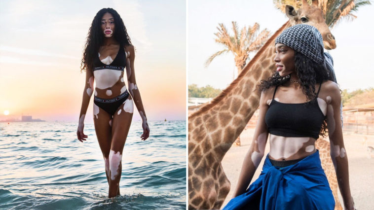 winnie harlow model turned instagram star proudly shows off her vitiligo